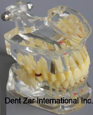 Adult Pathologies Teeth Model