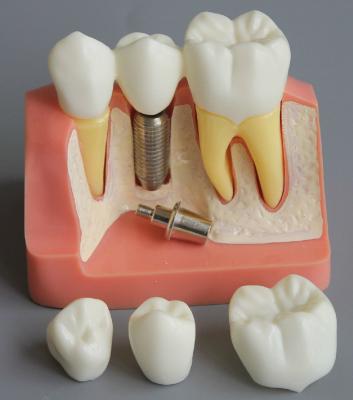 Demonstration Teeth Model Implant Analysis Crown Bridge for Dentist