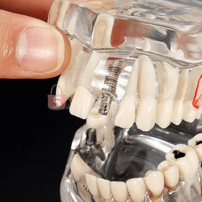 Dental Implant Teeth Model with Restoration & Bridge Tooth