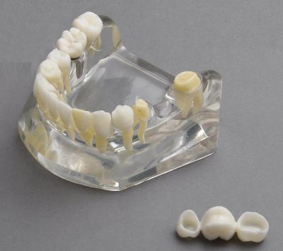 Lower Jaw Implant Model with Bridge